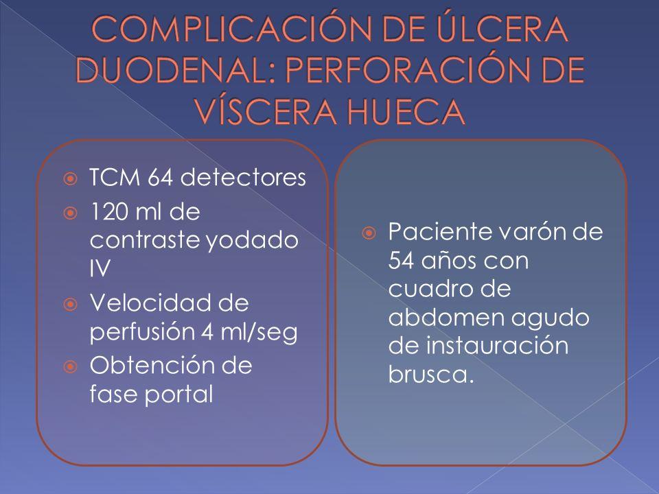 COMPLICACIÓN DE ÚLCERA DUODENAL: PERFORACIÓN DE VÍSCERA HUECA