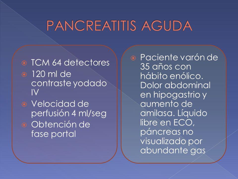 PANCREATITIS AGUDA TCM 64 detectores. 120 ml de contraste yodado IV. Velocidad de perfusión 4 ml/seg.