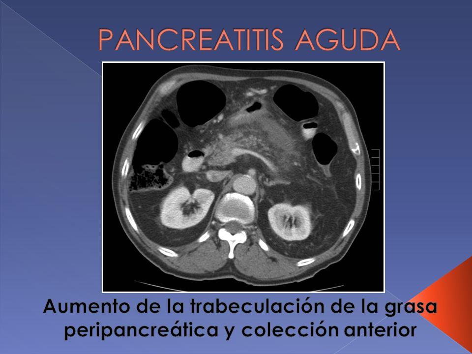 PANCREATITIS AGUDA Aumento de la trabeculación de la grasa peripancreática y colección anterior
