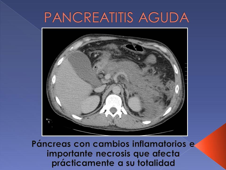 PANCREATITIS AGUDA Páncreas con cambios inflamatorios e importante necrosis que afecta prácticamente a su totalidad.