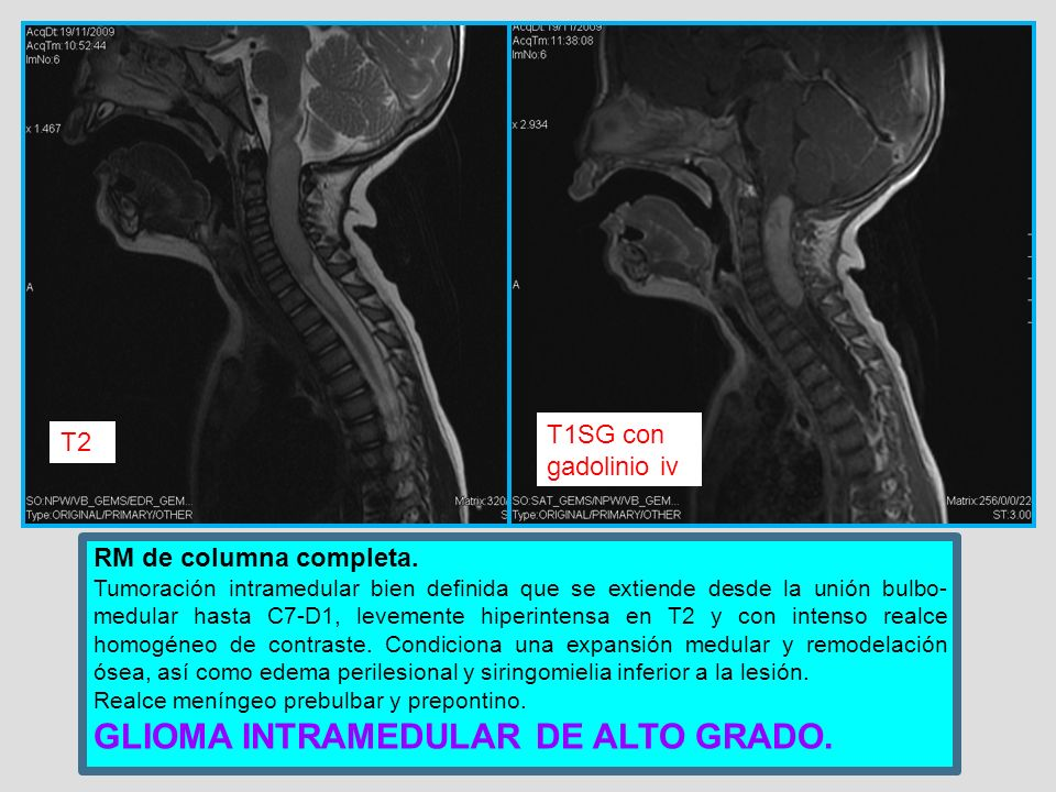 GLIOMA INTRAMEDULAR DE ALTO GRADO.