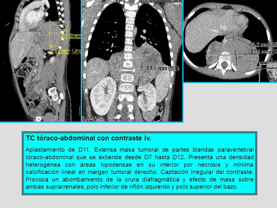 TC tóraco-abdominal con contraste iv.