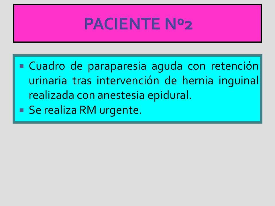 PACIENTE Nº2 Cuadro de paraparesia aguda con retención urinaria tras intervención de hernia inguinal realizada con anestesia epidural.