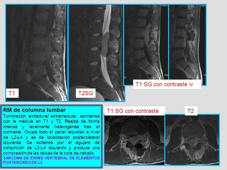 T1 SG con contraste iv T1 T2SG RM de columna lumbar