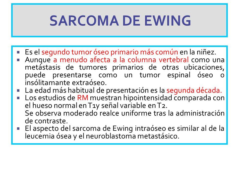SARCOMA DE EWING Es el segundo tumor óseo primario más común en la niñez.