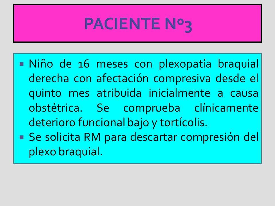 PACIENTE Nº3