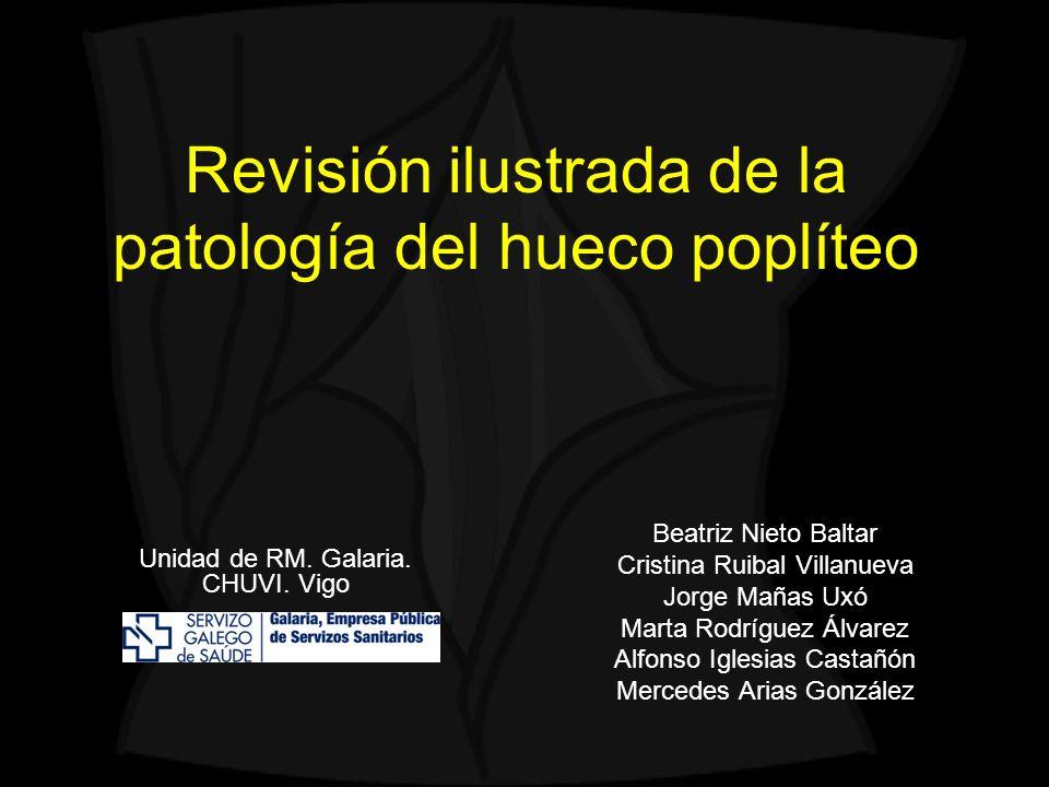 Revisión ilustrada de la patología del hueco poplíteo