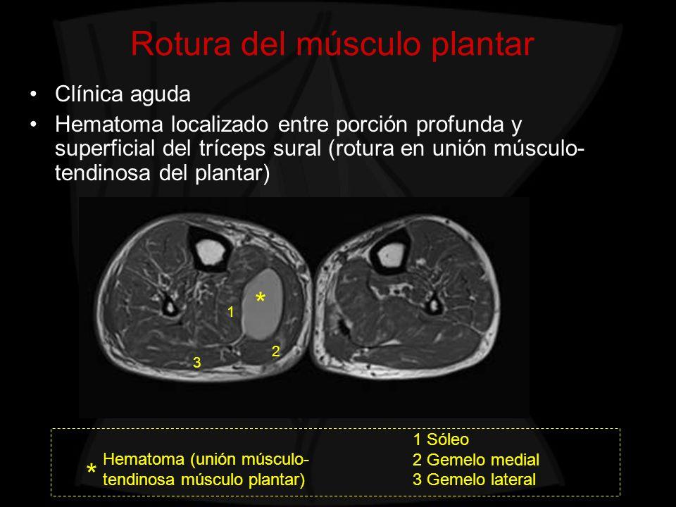 Rotura del músculo plantar