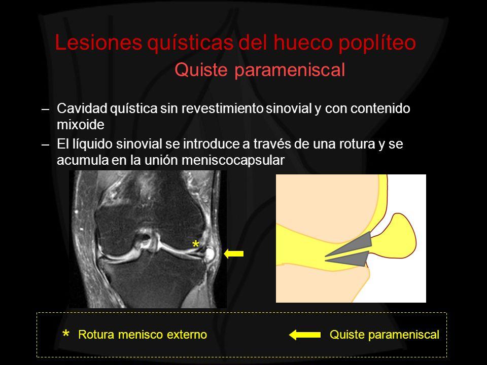 Lesiones quísticas del hueco poplíteo Quiste parameniscal