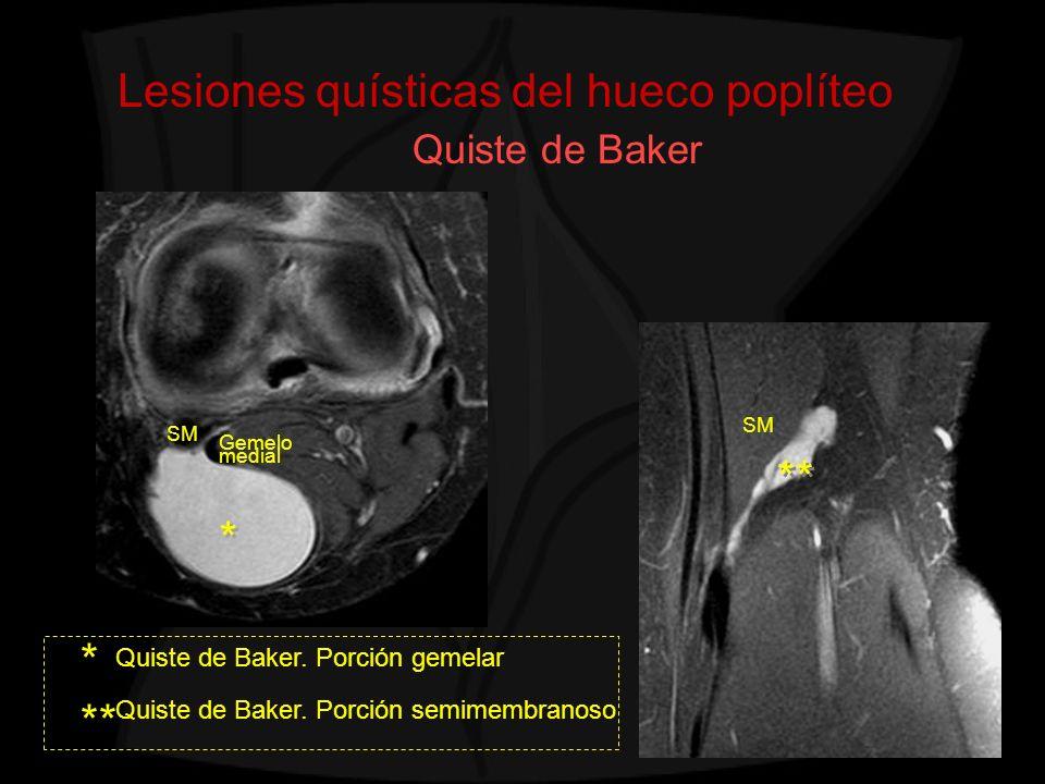 Lesiones quísticas del hueco poplíteo Quiste de Baker