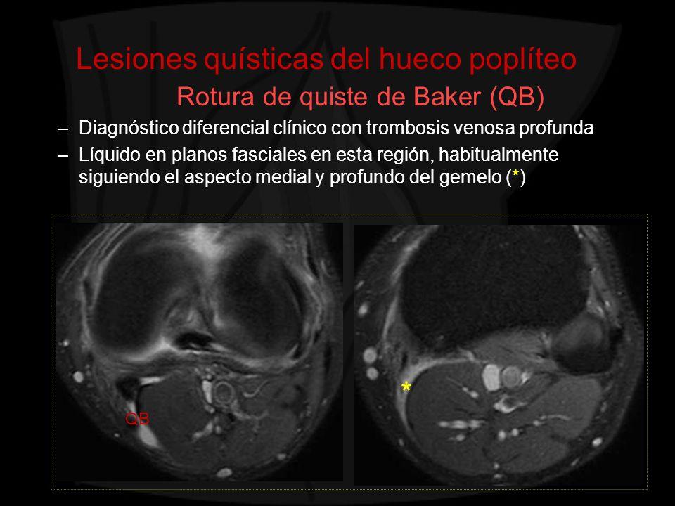 Lesiones quísticas del hueco poplíteo Rotura de quiste de Baker (QB)