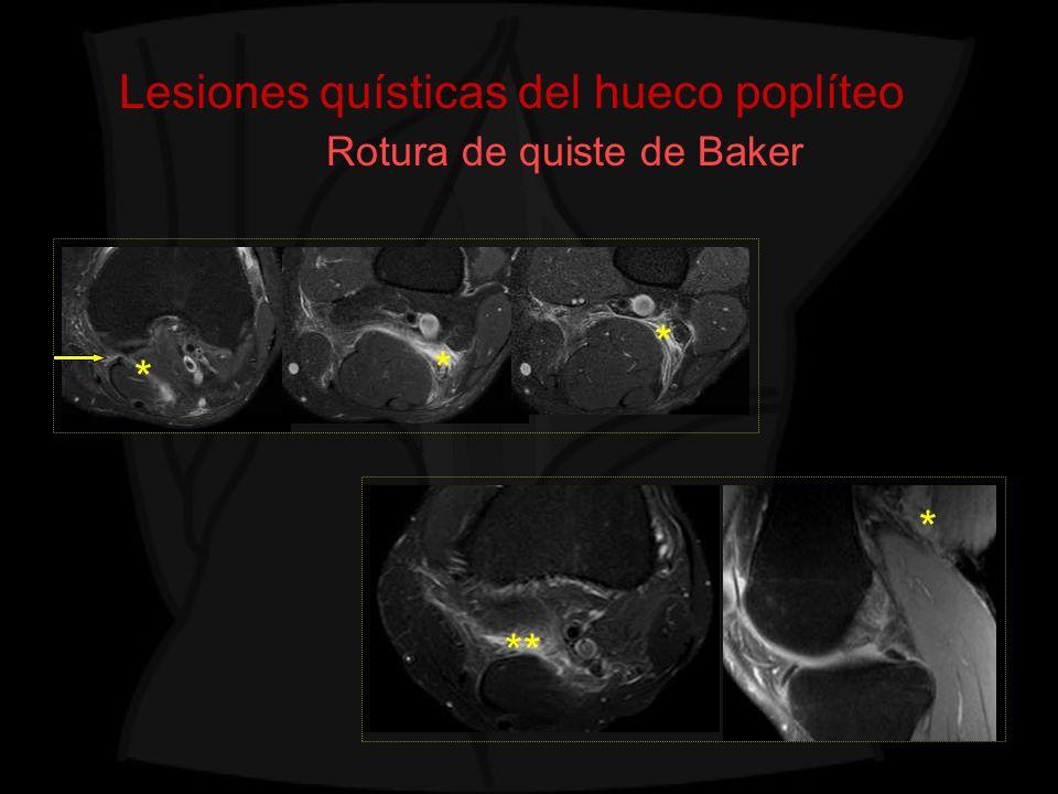 Lesiones quísticas del hueco poplíteo Rotura de quiste de Baker