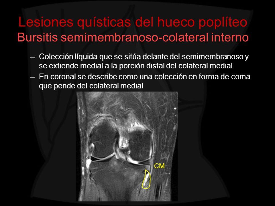 Lesiones quísticas del hueco poplíteo Bursitis semimembranoso-colateral interno