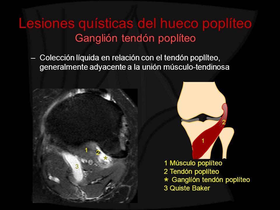 Lesiones quísticas del hueco poplíteo Ganglión tendón poplíteo
