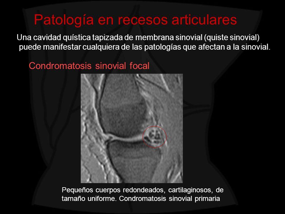 Patología en recesos articulares