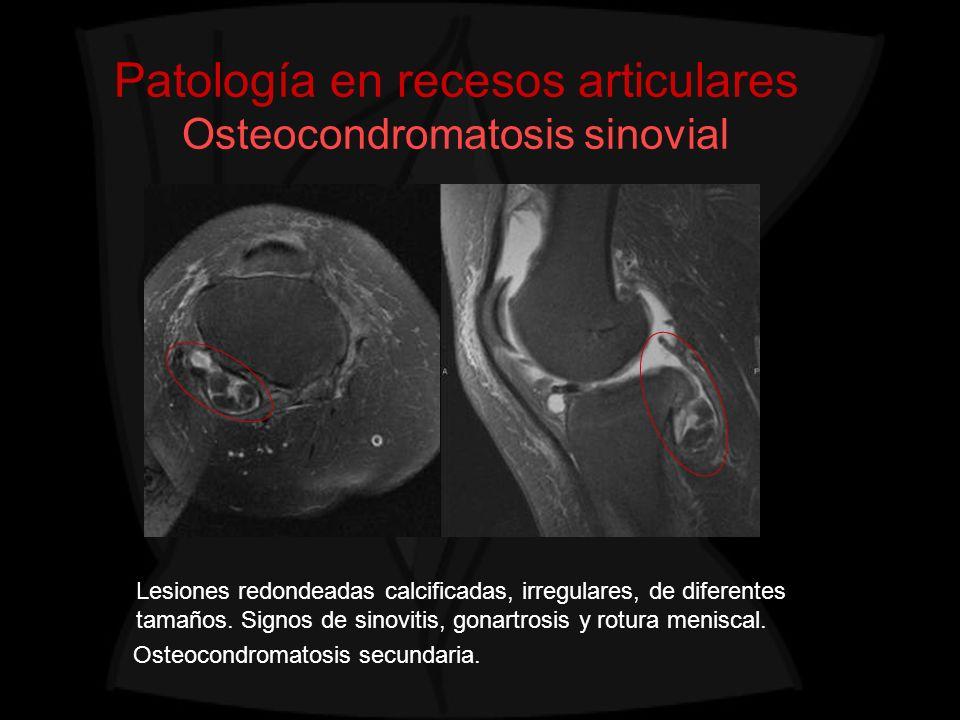 Patología en recesos articulares Osteocondromatosis sinovial