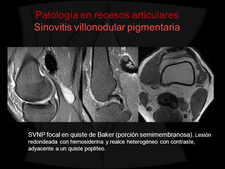 Patología en recesos articulares Sinovitis villonodular pigmentaria