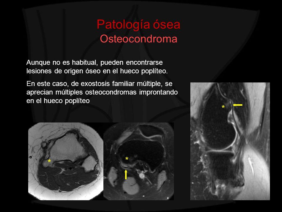 Patología ósea Osteocondroma