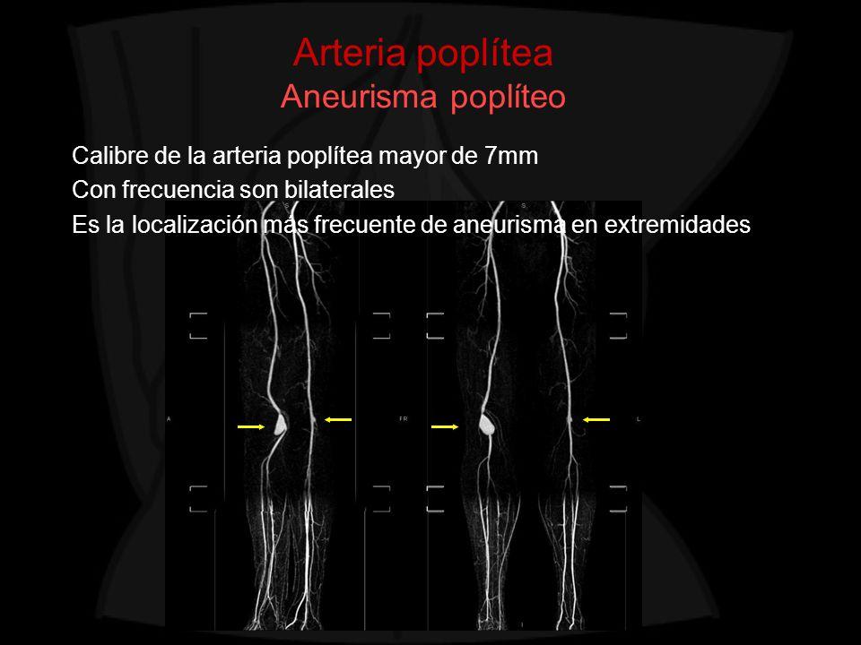 Arteria poplítea Aneurisma poplíteo
