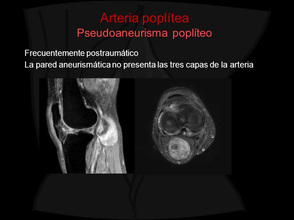 Arteria poplítea Pseudoaneurisma poplíteo