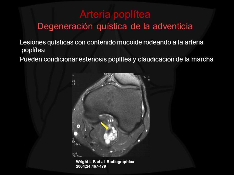 Arteria poplítea Degeneración quística de la adventicia