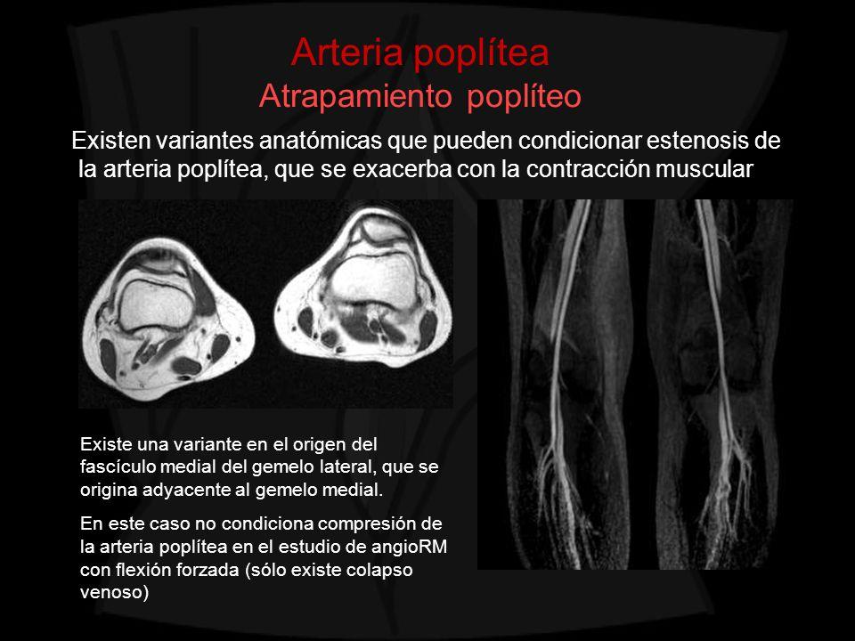 Arteria poplítea Atrapamiento poplíteo