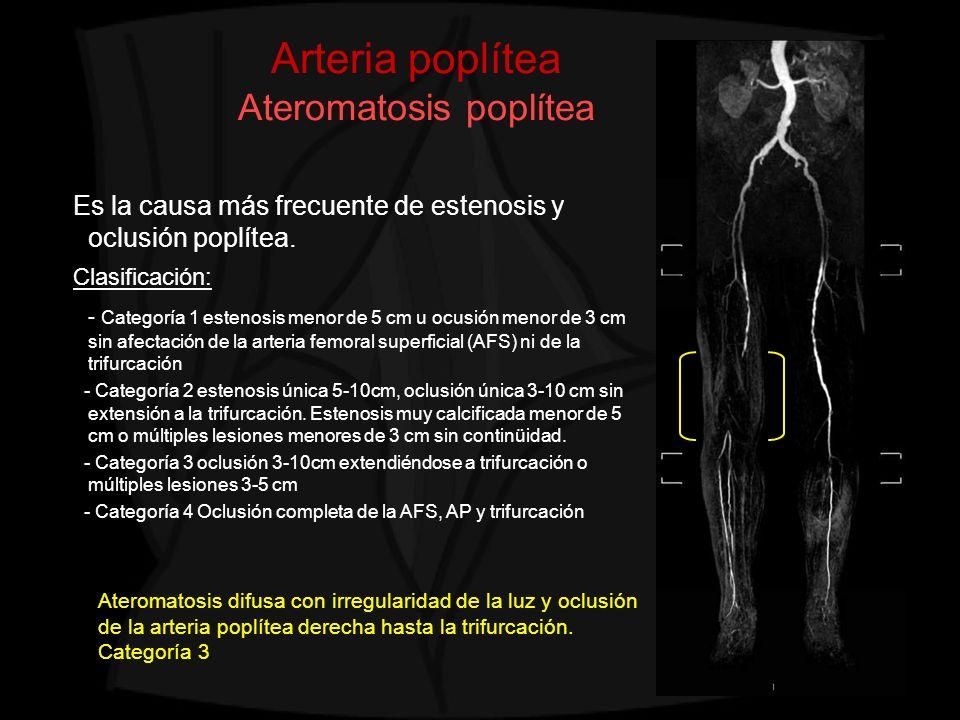 Arteria poplítea Ateromatosis poplítea