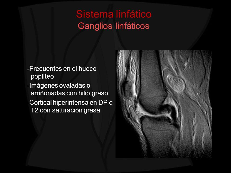 Sistema linfático Ganglios linfáticos