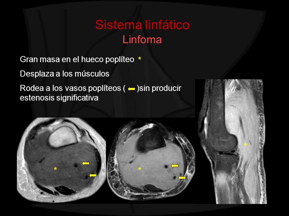 Sistema linfático Linfoma