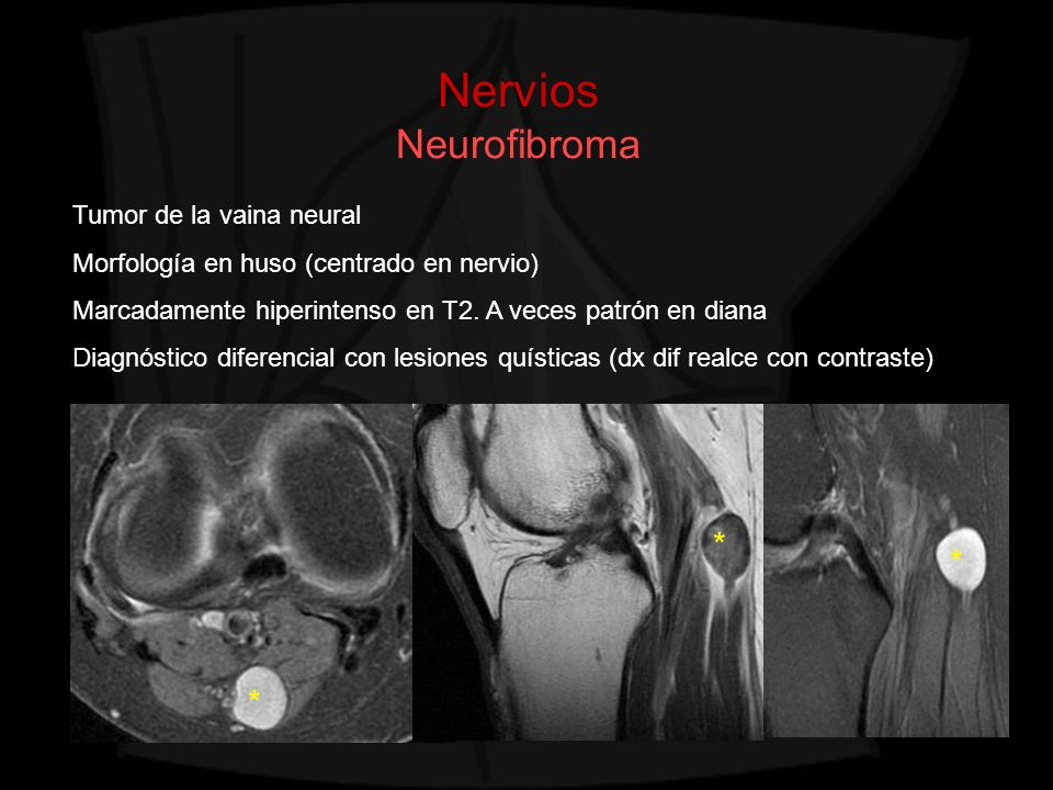 Nervios Neurofibroma * * * Tumor de la vaina neural