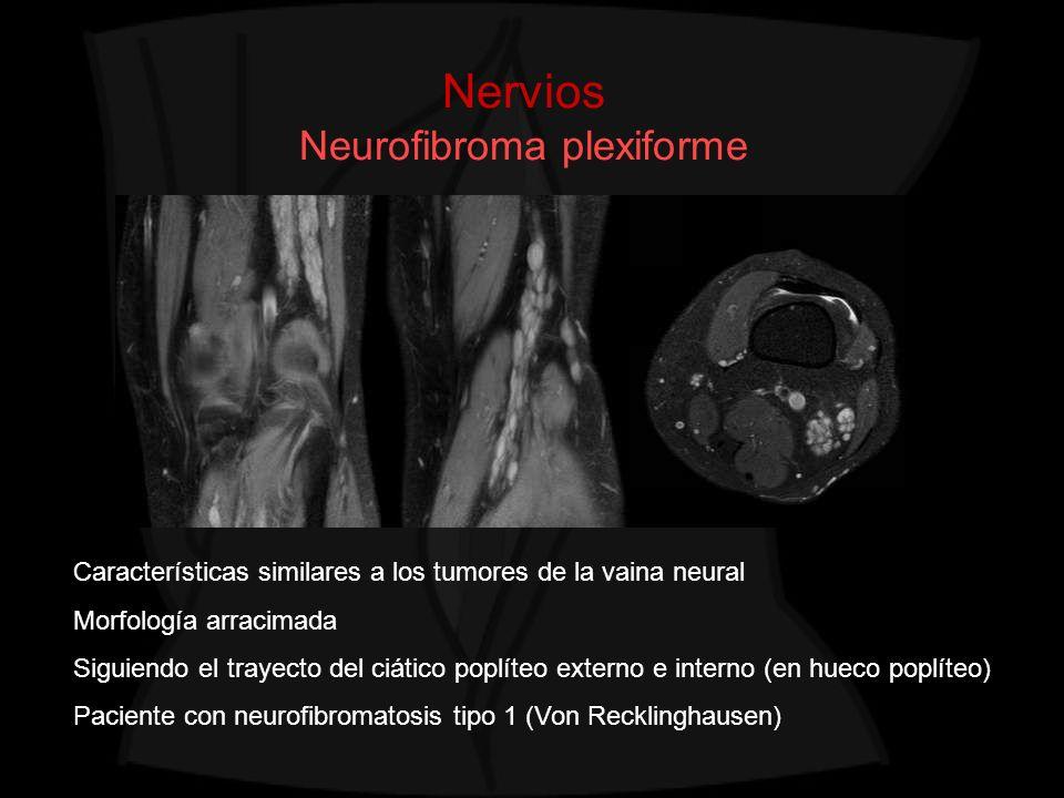 Nervios Neurofibroma plexiforme