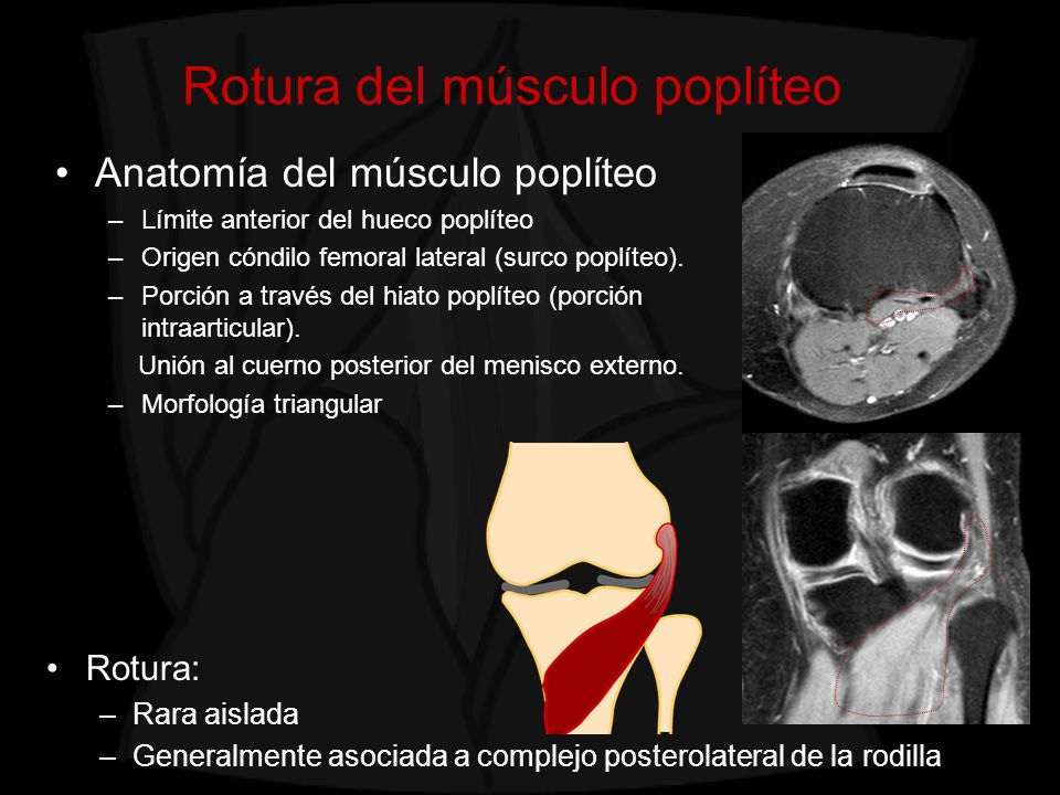 Rotura del músculo poplíteo
