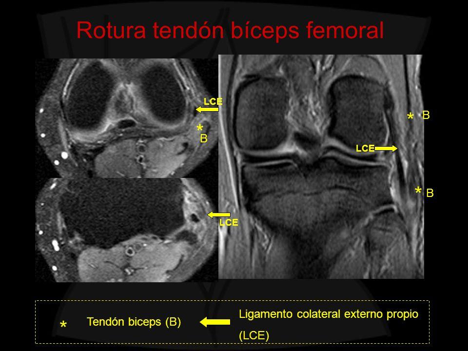 Rotura tendón bíceps femoral