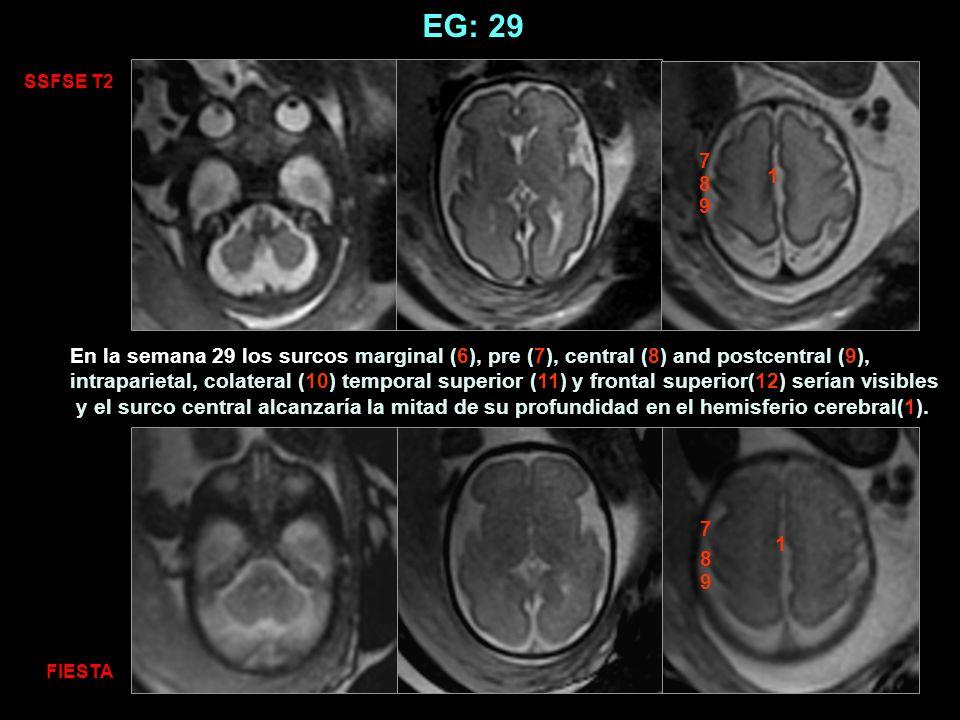 EG: 29 SSFSE T2. 7. 1. 8. 9.