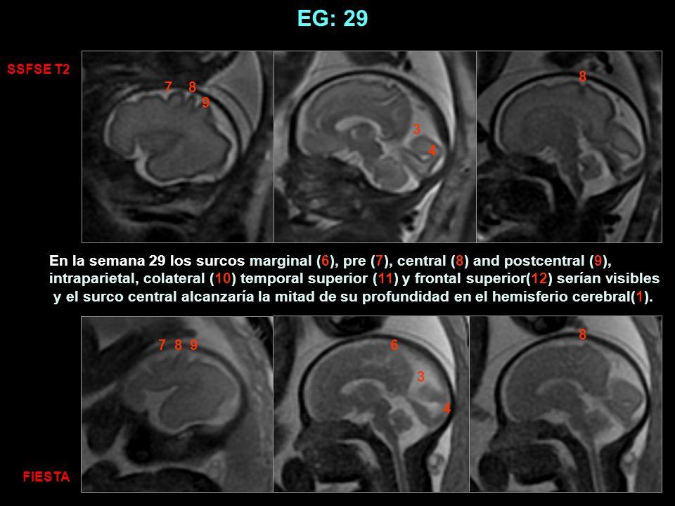 EG: 29 SSFSE T2. 8. 7. 8. 9. 3. 4.