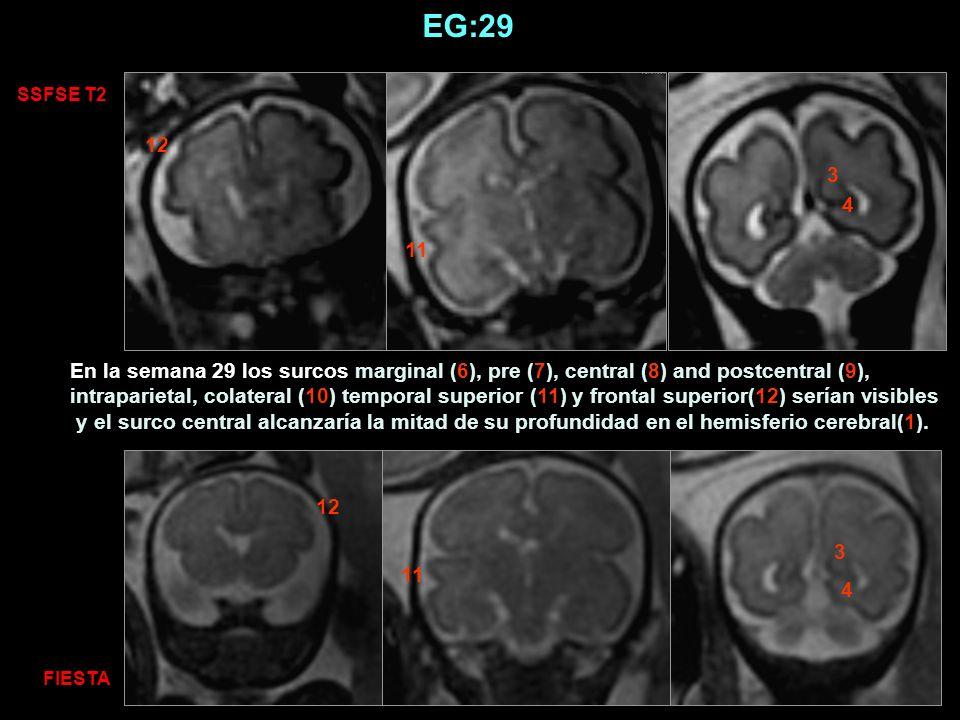 EG:29 SSFSE T2. 12. 3. 4. 11.