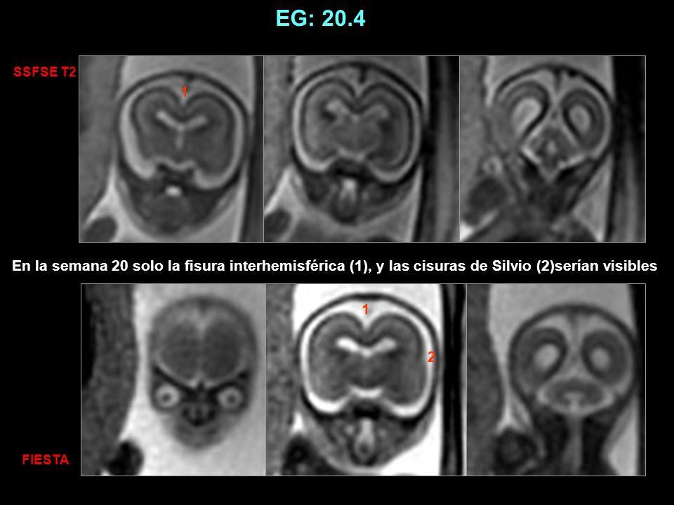 EG: 20.4 SSFSE T2. 1. En la semana 20 solo la fisura interhemisférica (1), y las cisuras de Silvio (2)serían visibles.