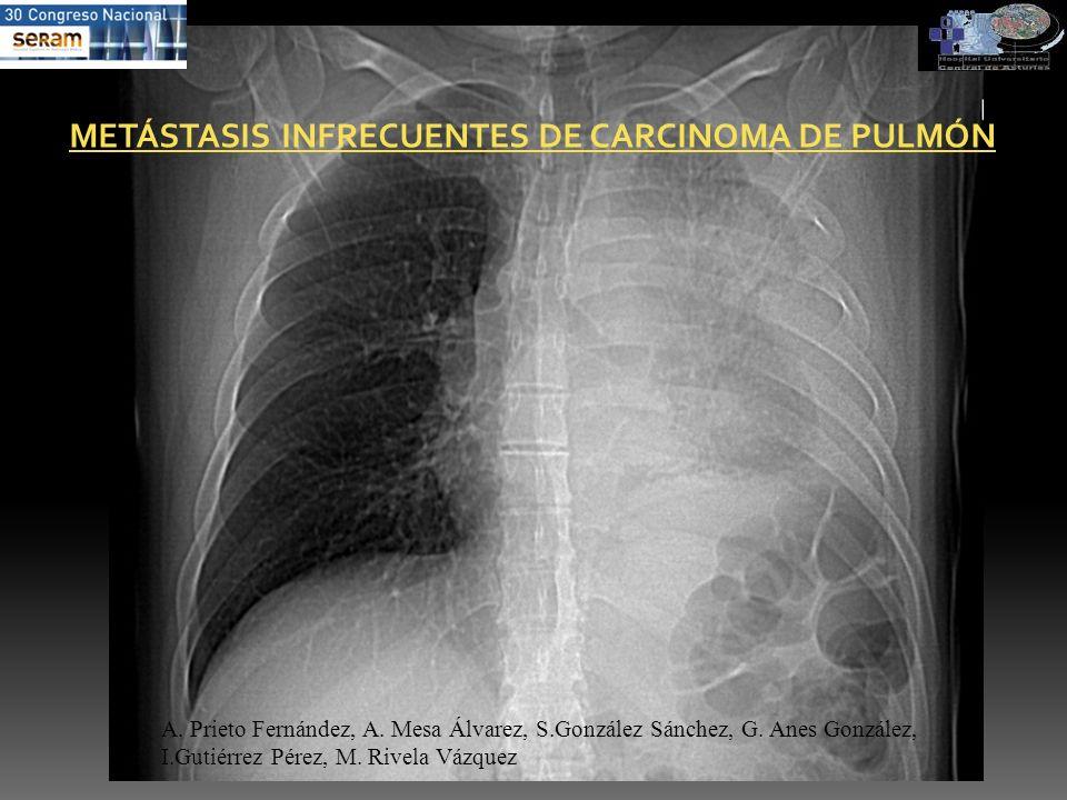 METÁSTASIS INFRECUENTES DE CARCINOMA DE PULMÓN