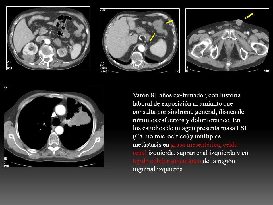 Varón 81 años ex-fumador, con historia laboral de exposición al amianto que consulta por síndrome general, disnea de mínimos esfuerzos y dolor torácico.