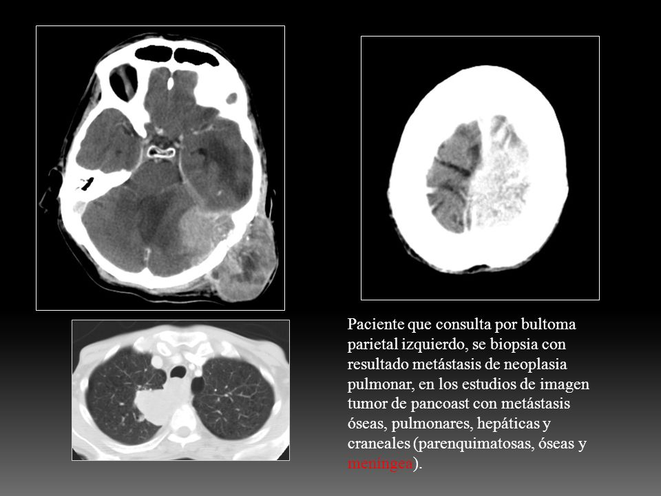 Paciente que consulta por bultoma parietal izquierdo, se biopsia con resultado metástasis de neoplasia pulmonar, en los estudios de imagen tumor de pancoast con metástasis óseas, pulmonares, hepáticas y craneales (parenquimatosas, óseas y meníngea).