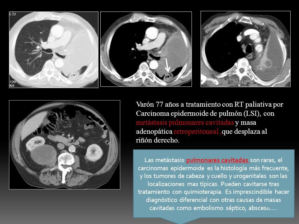 Varón 77 años a tratamiento con RT paliativa por Carcinoma epidermoide de pulmón (LSI), con metástasis pulmonares cavitadas y masa adenopática retroperitoneal ,que desplaza al riñón derecho.