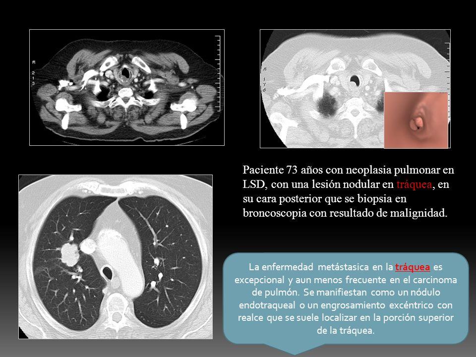 Paciente 73 años con neoplasia pulmonar en LSD, con una lesión nodular en tráquea, en su cara posterior que se biopsia en broncoscopia con resultado de malignidad.