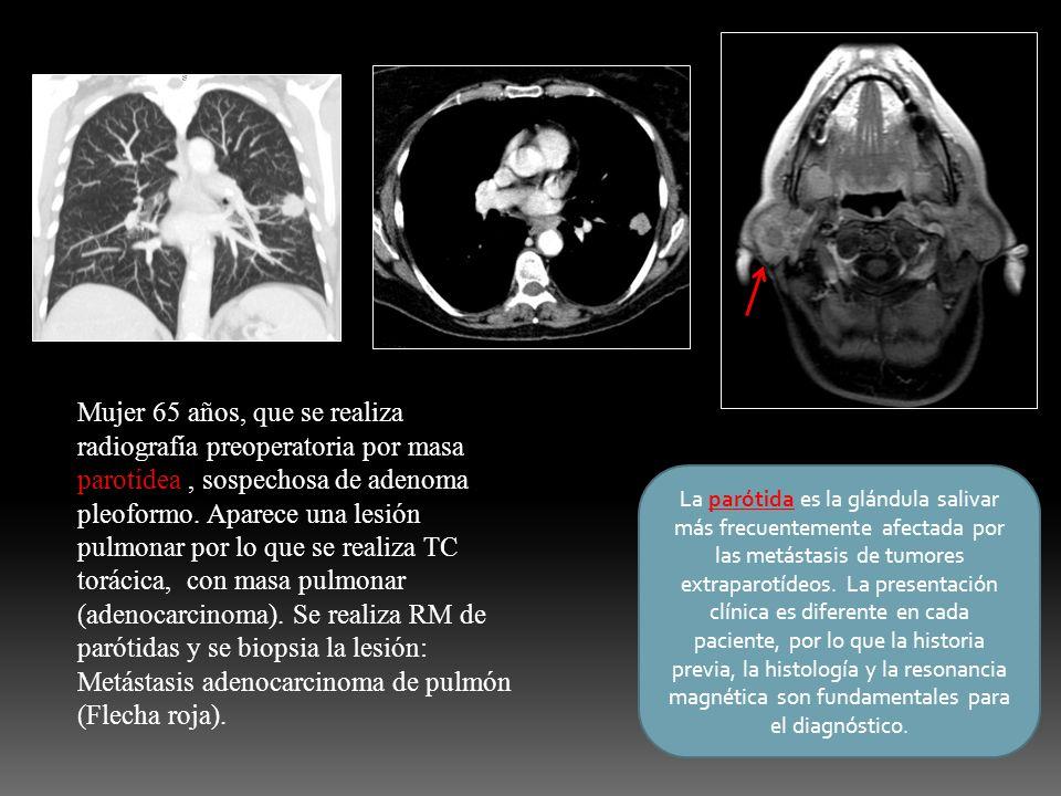 Mujer 65 años, que se realiza radiografía preoperatoria por masa parotídea , sospechosa de adenoma pleoformo. Aparece una lesión pulmonar por lo que se realiza TC torácica, con masa pulmonar (adenocarcinoma). Se realiza RM de parótidas y se biopsia la lesión: Metástasis adenocarcinoma de pulmón (Flecha roja).