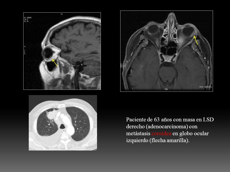 Paciente de 63 años con masa en LSD derecho (adenocarcinoma) con metástasis coroidea en globo ocular izquierdo (flecha amarilla).