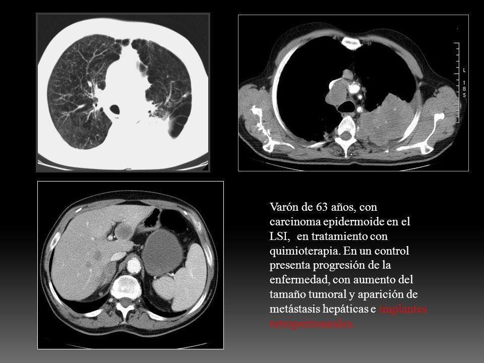 Varón de 63 años, con carcinoma epidermoide en el LSI, en tratamiento con quimioterapia.