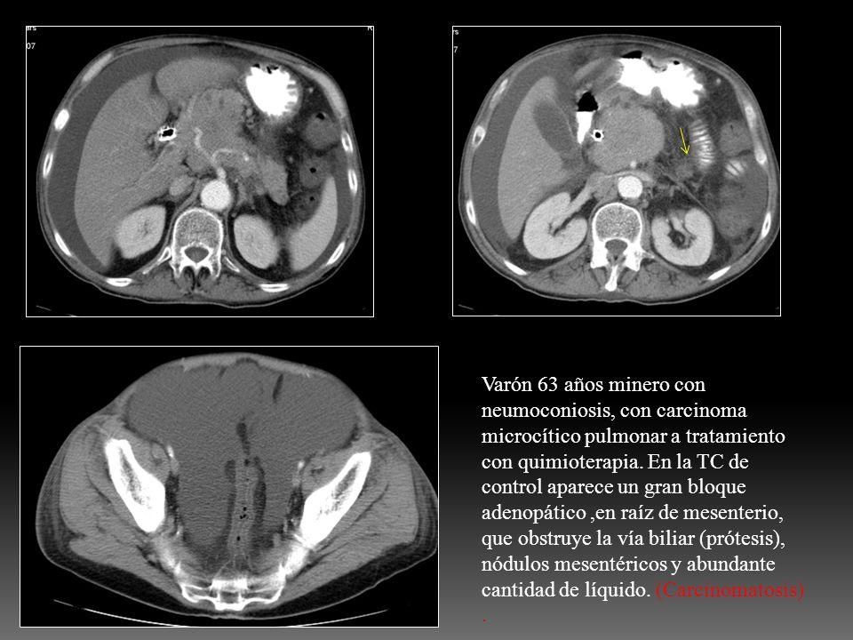 Varón 63 años minero con neumoconiosis, con carcinoma microcítico pulmonar a tratamiento con quimioterapia.