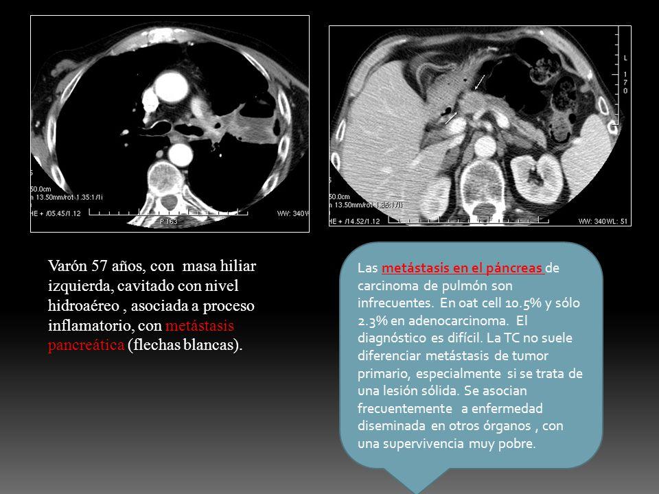 Las metástasis en el páncreas de carcinoma de pulmón son infrecuentes