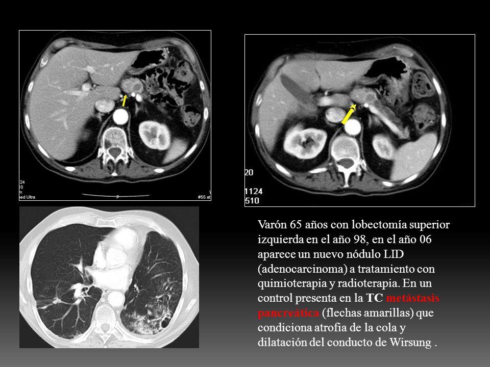Varón 65 años con lobectomía superior izquierda en el año 98, en el año 06 aparece un nuevo nódulo LID (adenocarcinoma) a tratamiento con quimioterapia y radioterapia.