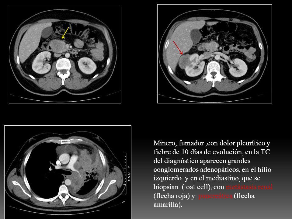 Minero, fumador ,con dolor pleurítico y fiebre de 10 días de evolución, en la TC del diagnóstico aparecen grandes conglomerados adenopáticos, en el hilio izquierdo y en el mediastino, que se biopsian ( oat cell), con metástasis renal (flecha roja) y pancreática (flecha amarilla).