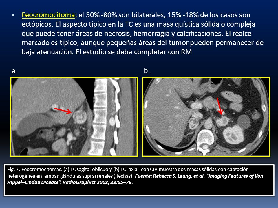 Feocromocitoma: el 50% -80% son bilaterales, 15% -18% de los casos son ectópicos. El aspecto típico en la TC es una masa quística sólida o compleja que puede tener áreas de necrosis, hemorragia y calcificaciones. El realce marcado es típico, aunque pequeñas áreas del tumor pueden permanecer de baja atenuación. El estudio se debe completar con RM